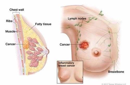 Các thông tin cần biết về ung thư vú