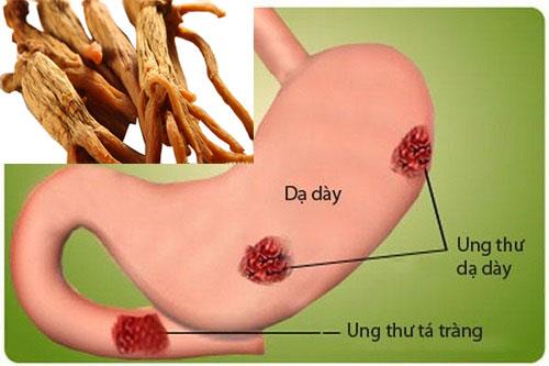 Cao hồng sâm Hàn Quốc và bệnh ung thư dạ dày