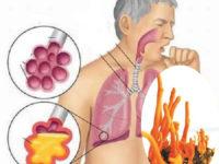 Tác dụng của đông trùng hạ thảo với bệnh hô hấp
