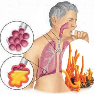 Đông trùng hạ thảo và tác dụng với bệnh hô hấp