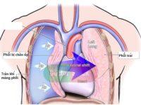 Bạn đã biết gì về bệnh tràn khí màng phổi chưa?