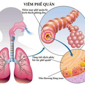 Một số điều cần biết về bệnh viêm phế quản