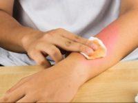 Cách làm liền vết bỏng trên da không để lại sẹo