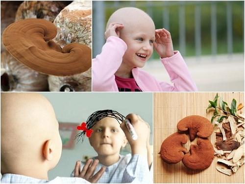 Phòng và điều trị ung thư bằng nấm linh chi