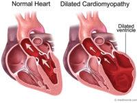 Bạn đã biết gì về bệnh viêm cơ tim chưa?