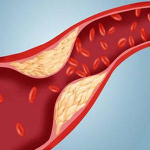 Bật mí 4 bài thuốc chữa bệnh mỡ máu bằng cách tự nhiên