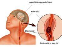 Bệnh thiếu máu não