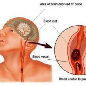 Nguyên nhân, triệu chứng bệnh thiếu máu não