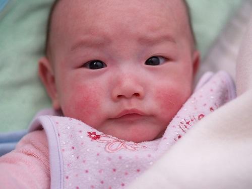 Bệnh chàm ở trẻ em là căn bệnh thường gặp ở trẻ
