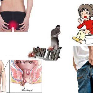 Top 3 cách chữa bệnh trĩ bằng phương pháp tự nhiên không cần thuốc