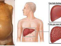 Bệnh xơ gan cổ trướng