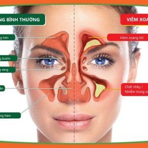 Cách chữa bệnh xoang mũi tại nhà bằng cách dân gian
