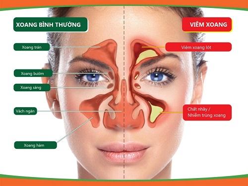 Bệnh xoang mũi gây cản trở trong ăn uống và giao tiếp