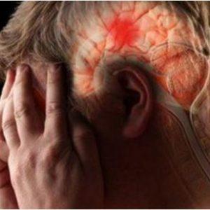 Dấu hiệu nhận biết sớm bệnh thiếu máu não