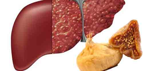 Điều trị ung thư gan bằng sung khô