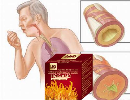 Điều trị viêm phế quản bằng đông trùng hạ thảo hqgano