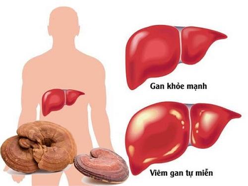 Nấm linh chi chữa bệnh ung thư gan