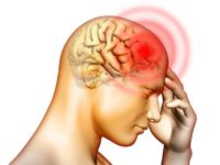 Top những dấu hiệu trầm trọng cho bệnh thiếu máu não