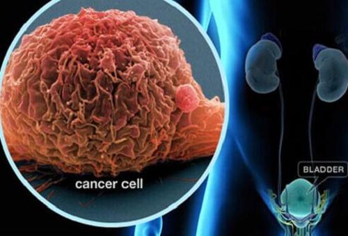 7 Loại cây chữa bệnh ung thư kéo dài tuổi thọ hơn vạn người