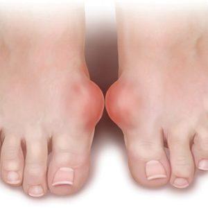 Cách chữa bệnh Gout bằng thuốc nam hiệu quả nhất hiện nay