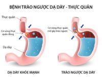 Bệnh trào ngược dạ dày là nguy có dẫn đến ung thư dạ dày