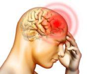 Bệnh u não là căn bệnh nguy hiểm, đe dọa trực tiếp tính mạng