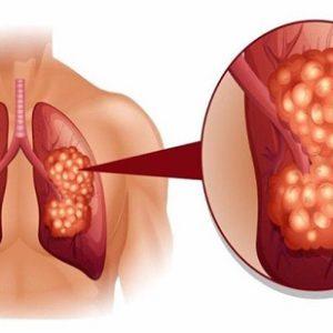 Mách bạn cách chữa bệnh ung thư phổi bằng cây thuốc quanh nhà