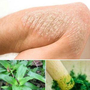 Hướng dẫn cách chữa bệnh vảy nến bằng cây lược vàng hiệu quả 100%