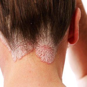 Khám phá cách chữa bệnh vẩy nến da đầu đơn giản mà hiệu quả