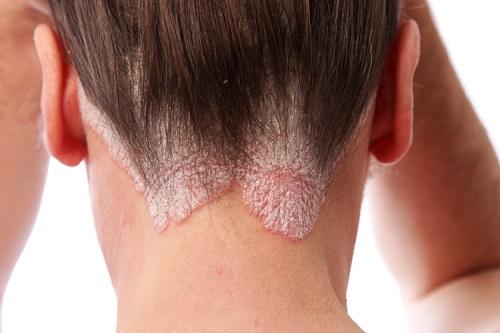 Cách chữa nấm da đầu hiệu quả