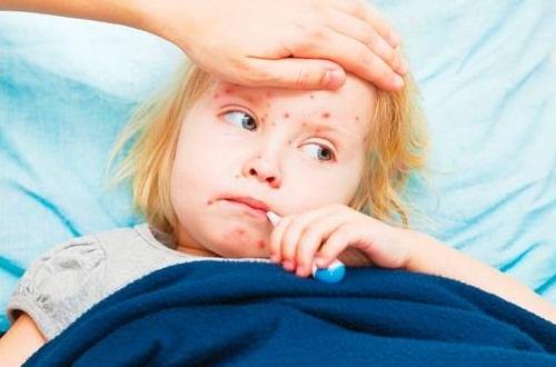 Sởi là căn bệnh thường gặp ở trẻ có thể dẫn đến các biến chứng nguy hiểm
