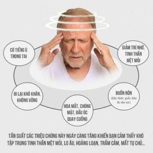 Tư vấn cách chữa rối loạn tiền đình hiệu quả, an toàn