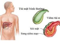 Sỏi mật là căn bệnh nguy hiểm nếu không điều trị kịp thời
