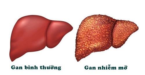 Gan nhiễm mỡ gây ảnh hưởng đến sức khỏe