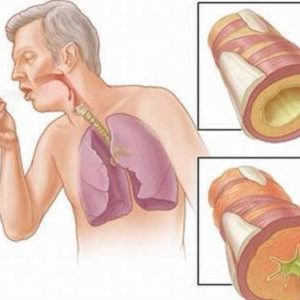 Điểm danh các dấu hiệu hàng đầu nhận biết ung thư phổi