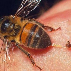 Hướng dẫn cách xử lý khi bị ong đốt đúng cách nhất