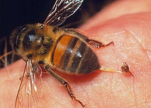 Bị ong đốt nếu không xử lý, chữa trị đúng cách sẽ để lại hậu quả khôn lường