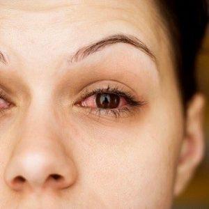 Cách chữa bệnh khô mắt nhanh chóng nhất