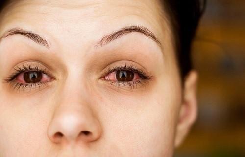 Khô mắt là một trong những chứng bệnh có thể gặp ở bất kì ai