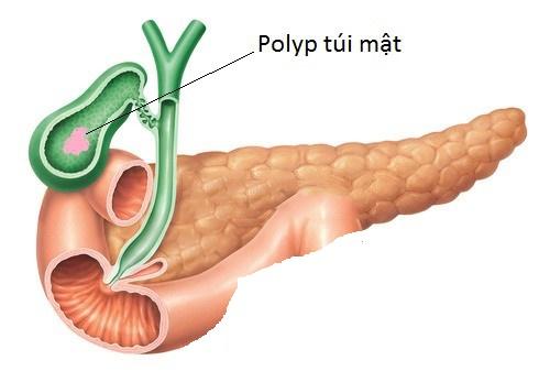 Bệnh polyp túi mật là căn bệnh nguy hiểm