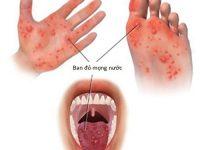 Tay chân miệng là một trong các chứng bệnh thường gặp