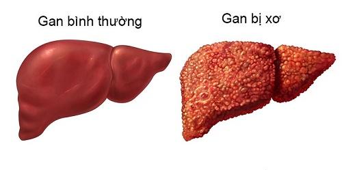 Dấu hiệu nhận biết bệnh xơ gan