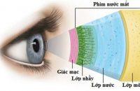 Giải pháp nào tốt nhất dành cho đôi mắt mỏi và khô?