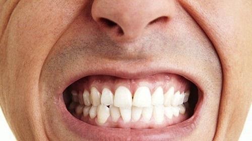 Nghiến răng gây ra nhiều tác hại