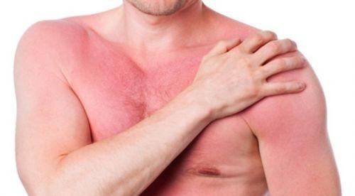 Phát ban đỏ là bệnh do nhiều nguyên nhân gây ra