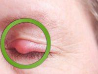 Lẹo ở mắt là một bệnh lý thường gặp, do nhiều nguyên nhân