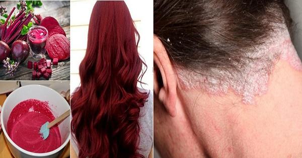 Tác hại của nhuộm tóc bằng hóa chất rẻ tiền
