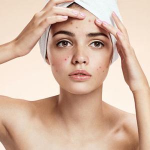 Tại sao chăm sóc da kỹ mà vẫn bị mụn