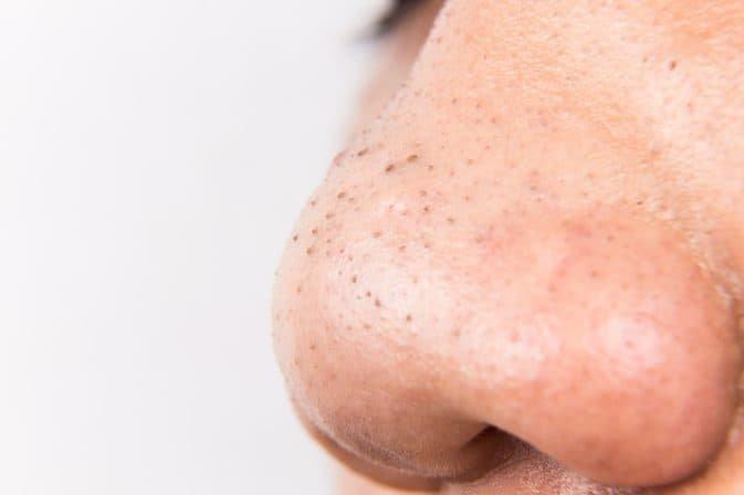 Top 4 cách trị mụn đầu đen ở mũi tận gốc tại nhà hiệu quả, bạn hãy thử ngay