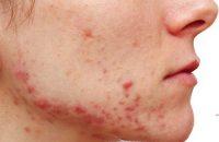 Nguyên nhân gây ra mụn và cách chăm sóc da mụn hiệu quả nhất